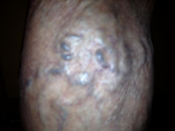 Will spider & varicose veins go away if you lose weight?