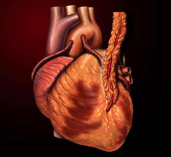 Has a doctor ever done heart bypass surgery laproscopically?