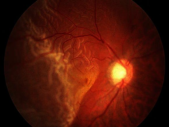 What causes retinal detachment to occur?