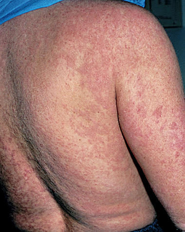 I have severe eczema, having trouble living a normal life. Please help me!?