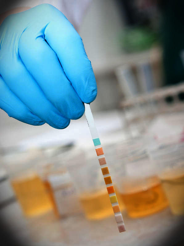 Do regular doctors urine tests show alcohol?
