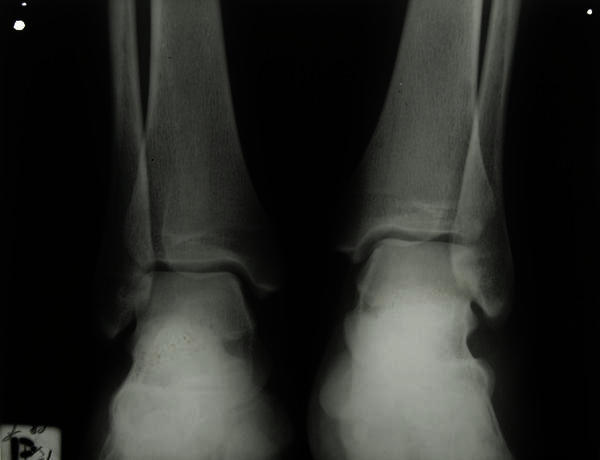 Which doctor is better at popping an ankle back into place (more experience, training etc) dpm or orthopedic surgeon with foot ankle residency?