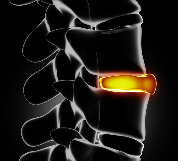Is bladder retention and ruptured disc related?
