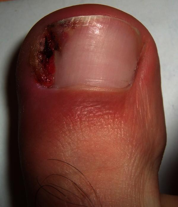 How soon after ingrown toenail minor surgery should I wait to play football it's just touch football no contact?