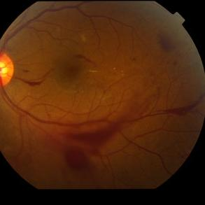 Who's most at risk for diabetic retinopathy?