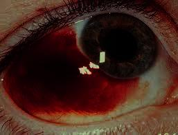 I noticed a big red spot on my eyeball today and thought it was pink eye, but now think it is a broken blood vessel. Does it require treatment?