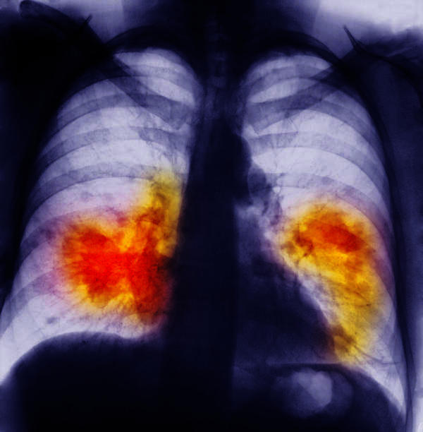 Can people survive lung cancer for years?