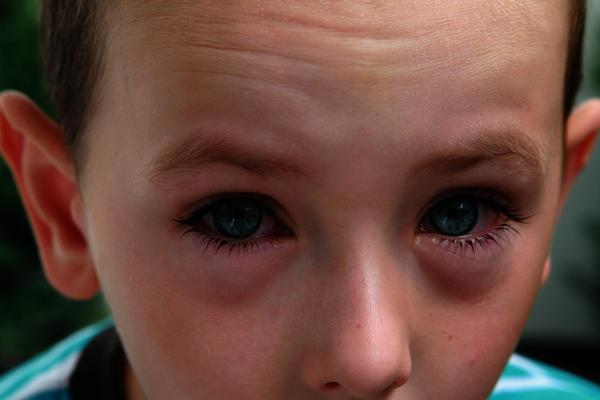 The Inner Corner Of My Eye Is Swollen - Doctor insights on HealthTap