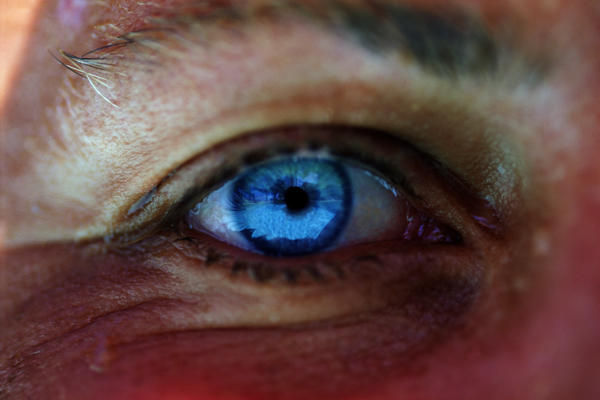 Are blue eyes more sensitive to light?