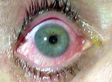 Does Dark Ring Around Your Iris Mean