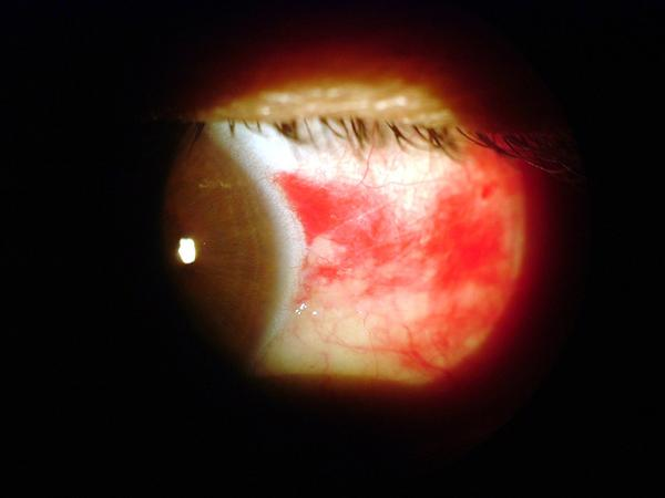 What does a broken blood vessel in the eye mean?