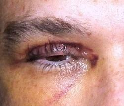 How long after getting hit in the eye does it take to turn blue?