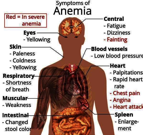 Can you die from chronic anemia ?