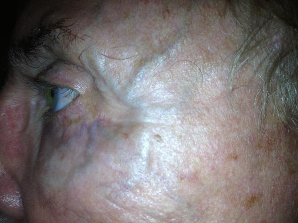 What causes a protruding vein on the right side of someone's forehead?