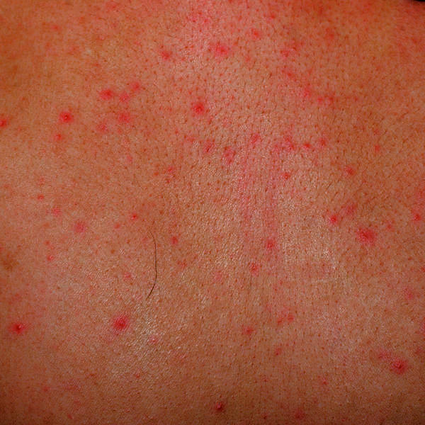 Red Spots on legs, Itchy, Pictures, Dots, Patches ...