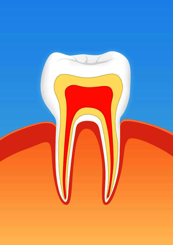 How long does it take gingivitis resolve?