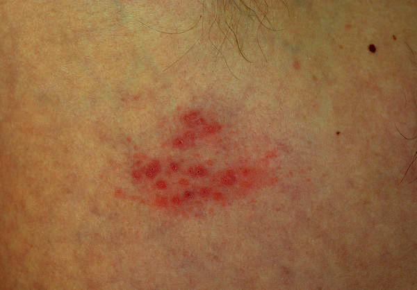 How long do the scabs last with shingles?