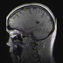 Is a brain contusion different from a concussion?