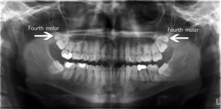 Can wisdom teeth come back?
