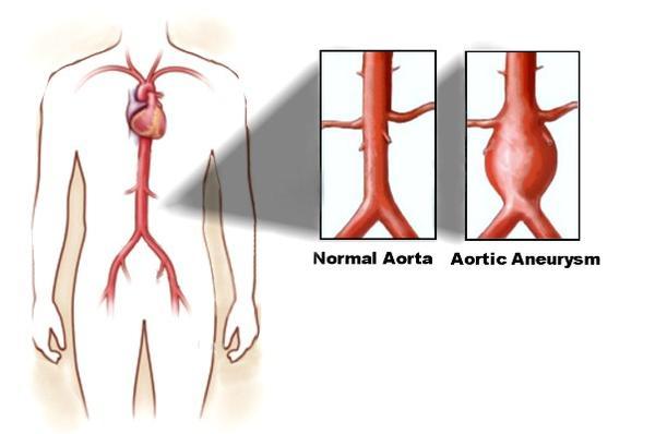 How do I find out why can I feel a pulse in my abdomen?