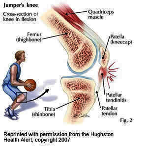 I feel slight discomfort in my right knee when i sit  with knees bent. I started taking glucosamine twice a day (1500 mg each tablet). Will that help?