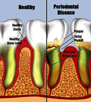 How can I get rid of bad breath caused by gum disease?