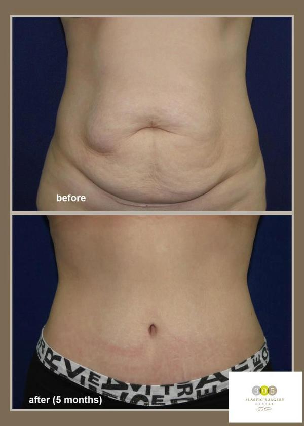 Is 25 years old to young to get a tummy tuck & a breast lift?