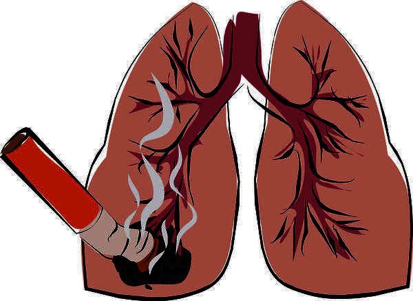 Would a clear chest X-ray mean there is no lung cancer?