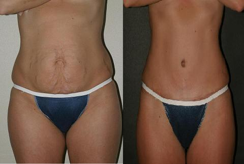 Tummy Tuck Swelling After 6 Months Doctor Insights On