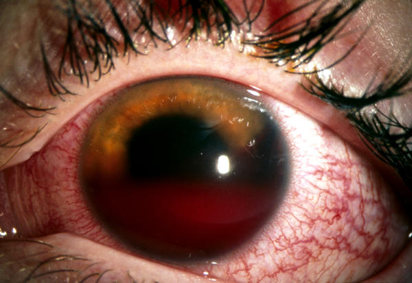 How likely to develop glaucoma after eye injury?