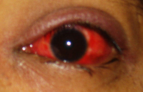 The left half of my left eyeball has become increasingly bloodshot and achy like its bruised in the last 24 hours. 25 years old, first time...?