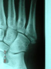 Is 3 months to heal a 5th metatarsal fx unusual?