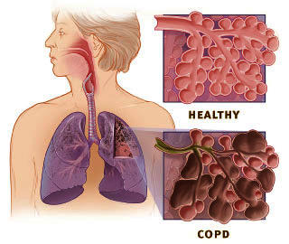 If you are diagnosed with COPD how long do you live after?