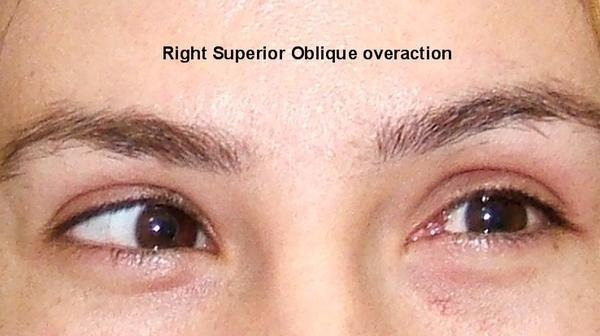 How long does bruising to the superior oblique eye muscle take to heal?