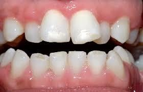 Does having crowded teeth mean you need braces?