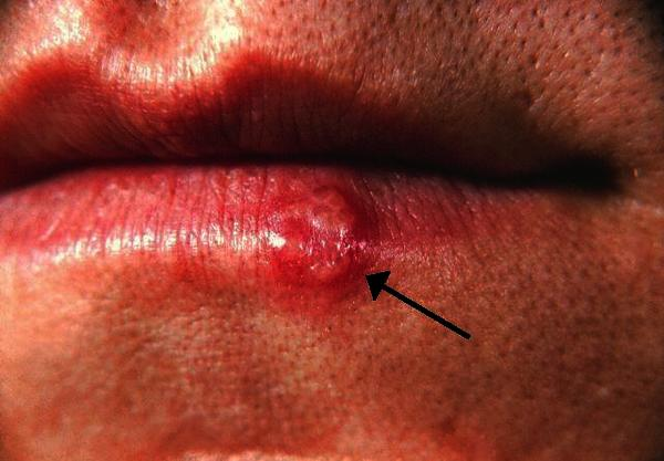 Does a cold sore mean you have herpes?
