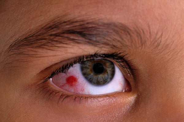 How long does conjunctivitis last and can it get better on its own?