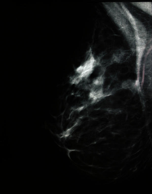 How can Paget's disease of breast be treated?