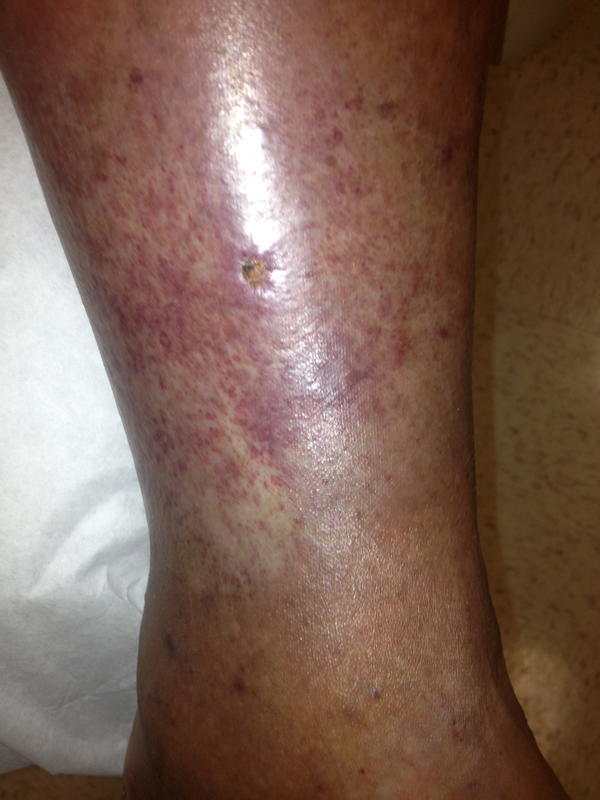 deep vein thrombosis symptoms in calf - doctor answers on healthtap, Human Body