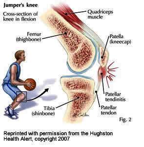 Does wearing patellar straps all the time help heal patella endonitis?