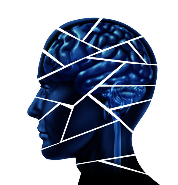 Best procedure to treat brain avm?