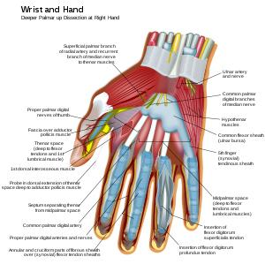 Is tendonitis a symptom of carpal tunnel syndrome? Can this be treated?
