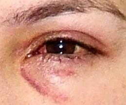 Why do I get red rings around eye on skin after swimming?