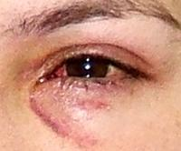 Why Do I Get Red Rings Around Eye On Skin After Swimming Answered By Top Doctors On Healthtap