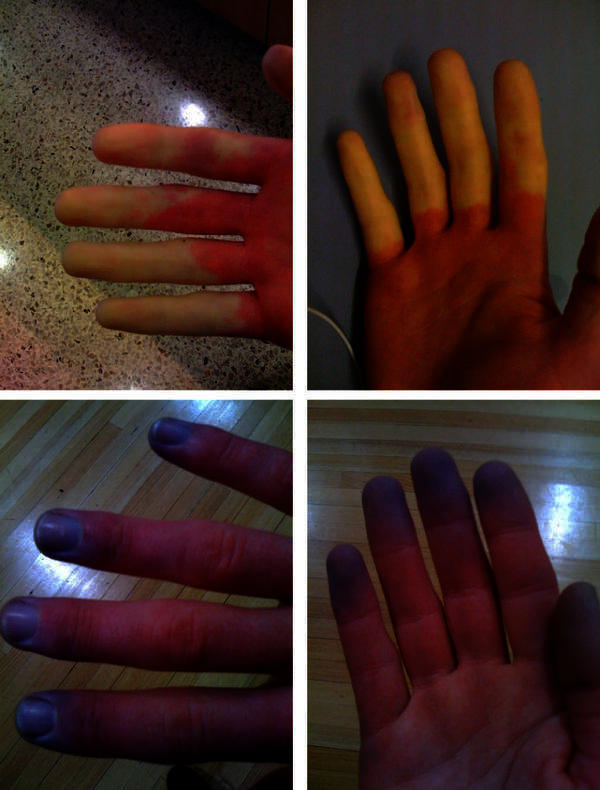 Is there a raynauds phenomenon treatment, and how long does it take?