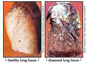 What does the lung tissue look like?
