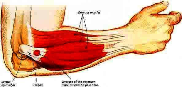 When should I expect to recover from tennis elbow?