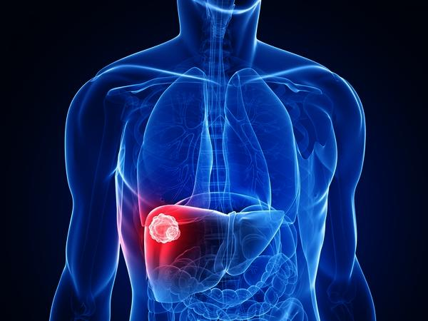 How long can you live with stage IV liver cancer without treatment?