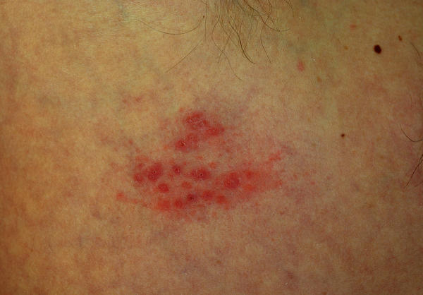 Does herpes look like pimples?