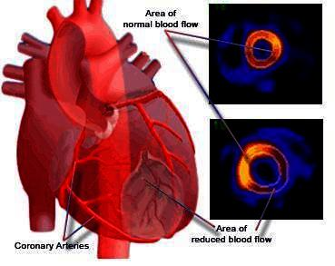 What is the physiological cause of a heart attack?